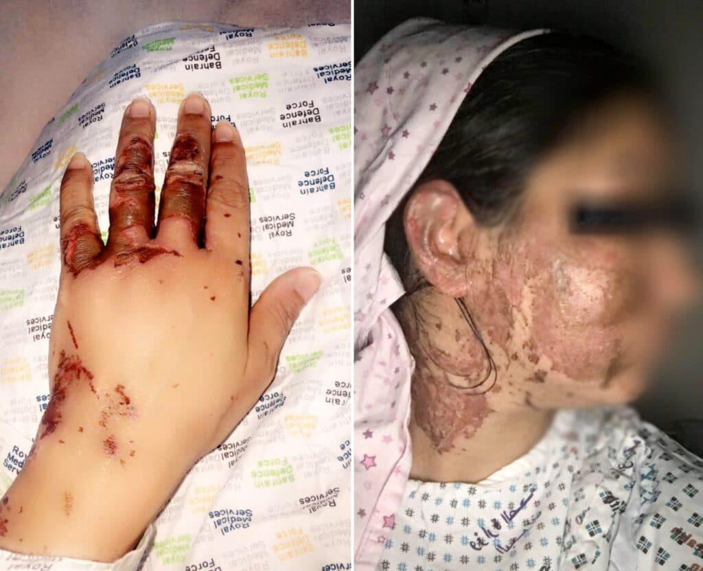 بحريني يحرق زوجته بالأسيد ويحاول اغتصابها